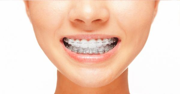 Am nevoie de aparat dentar?